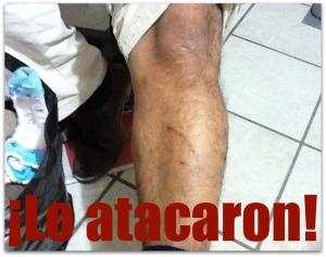 2 - 1 asaltado bateado y golpedo por pandilleros
