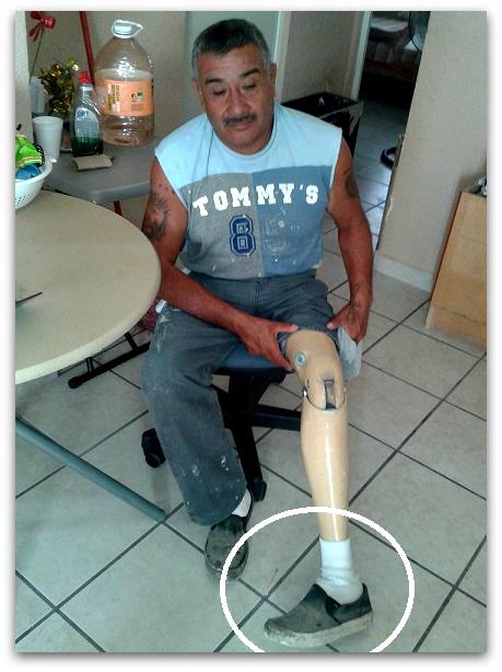 2 - 1 protesis dañada