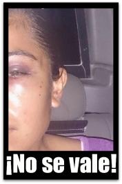 2 - 1 victima de violencia de su ex pareja